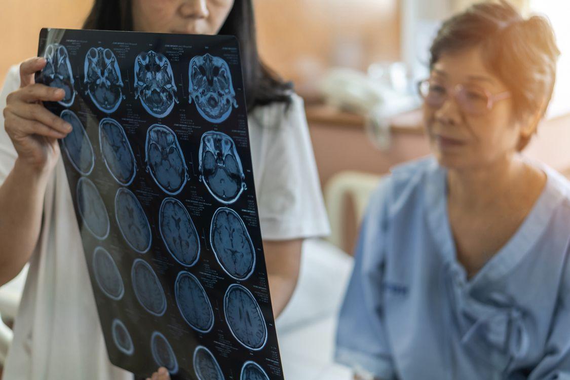 Quelles sont les principales causes de la maladie de Huntington ?